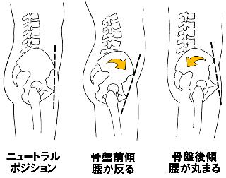 骨盤のニュートラルポジション