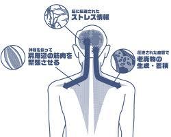 肩こりとストレスの関係