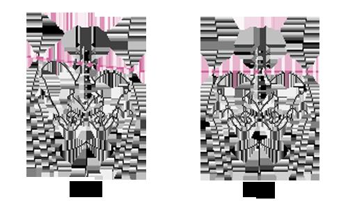 骨盤の右傾・左傾