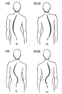 背骨の歪みの種類